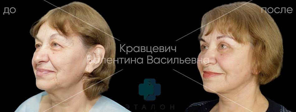 фото до/после проведенного СМАС-лифтинга в клинике Эталон