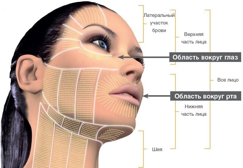 зоны проведения SMAS-лифтинга на лице и шее