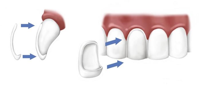 ds-spb.com/uslugi/protezirovanie-zubov/viniry